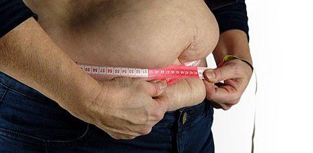 Starkes Übergewicht verlieren